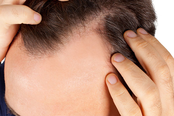 Hair Loss Alopecia Dandruff Baldness Hair Growth